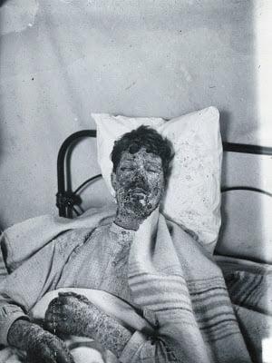 Covid dan Jajaran Pandemi Paling Mematikan dalam Sejarah